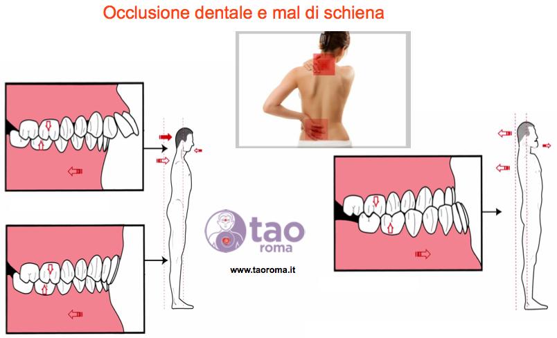 occlusione dentale : mal di schiena tao roma